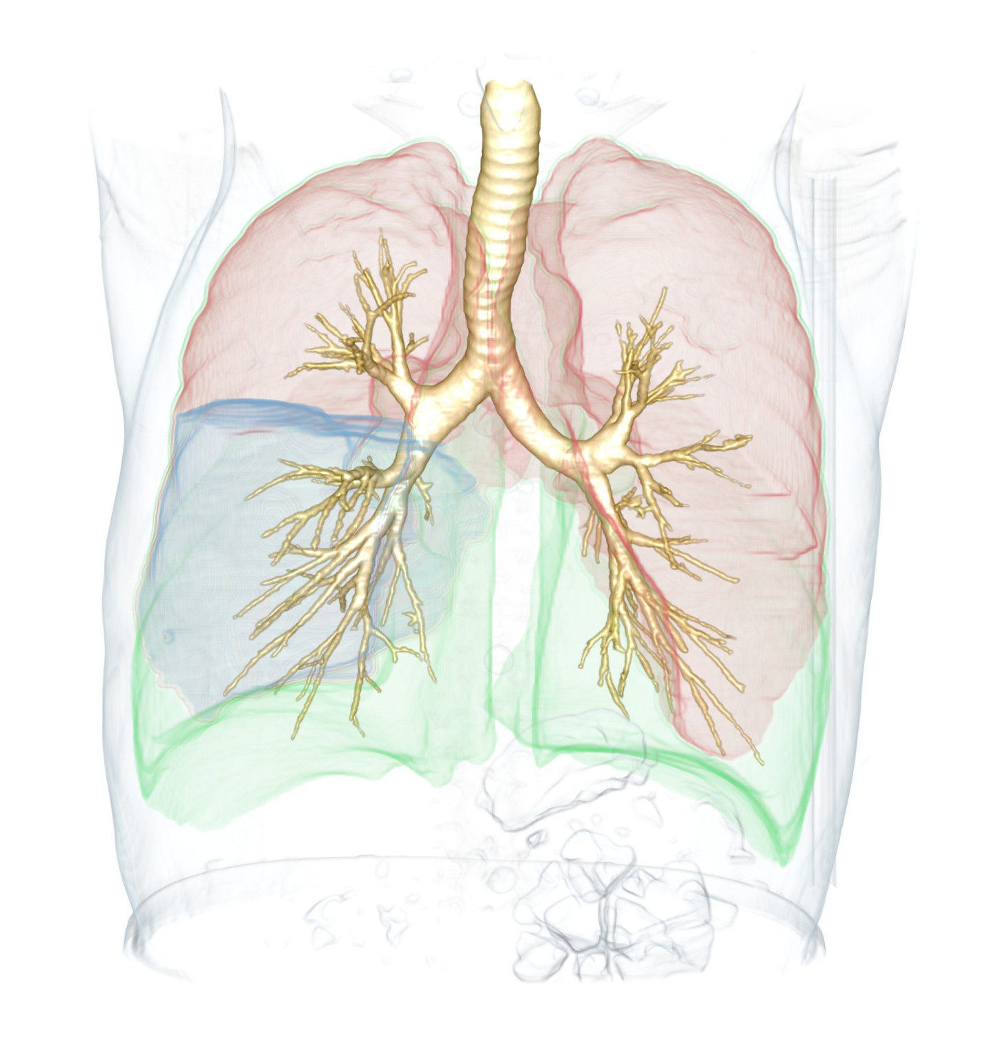 3D volume rendering of the segmented lungs, lobes, and airways.