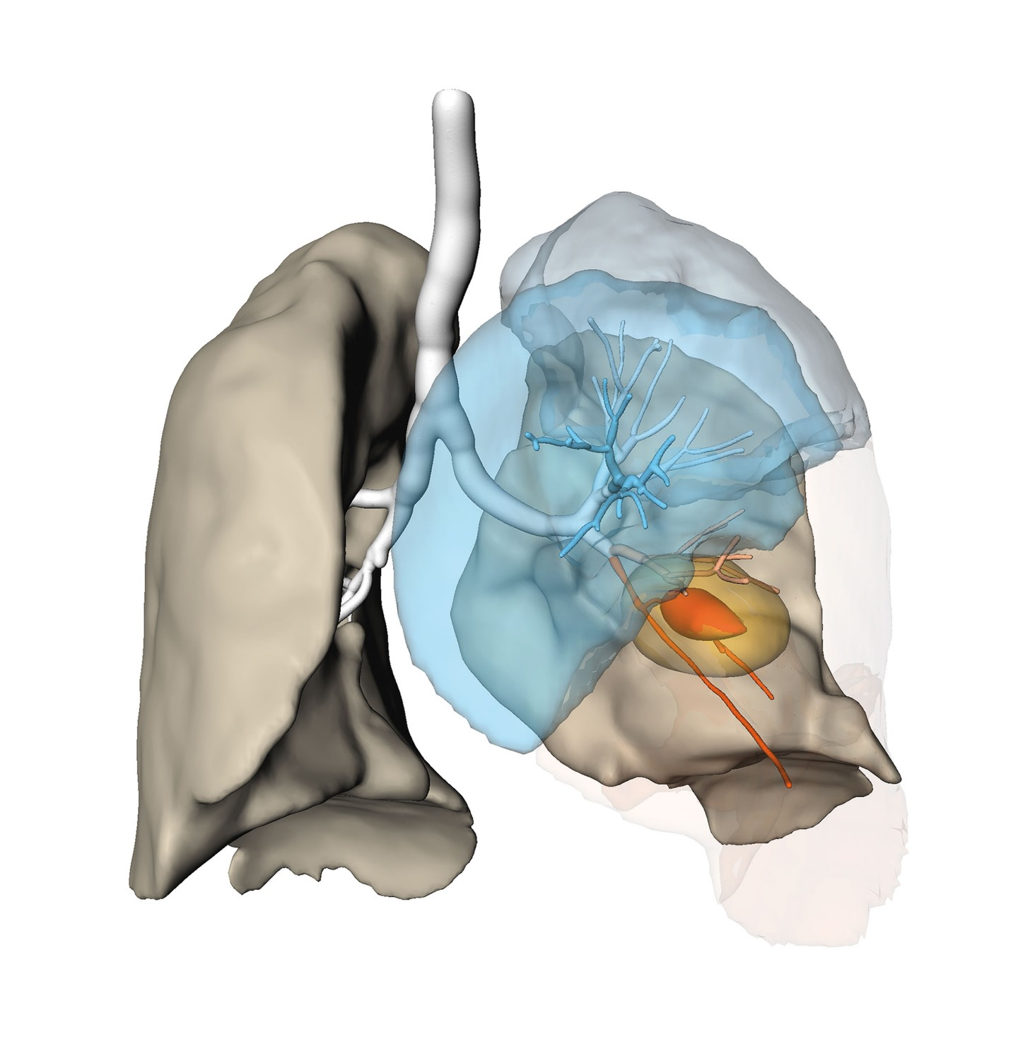 Risk analysis for planning a lung resection