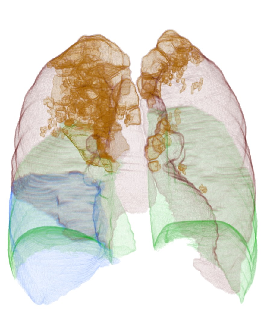3D volume rendering of lungs, lobes, and emphysema areas.