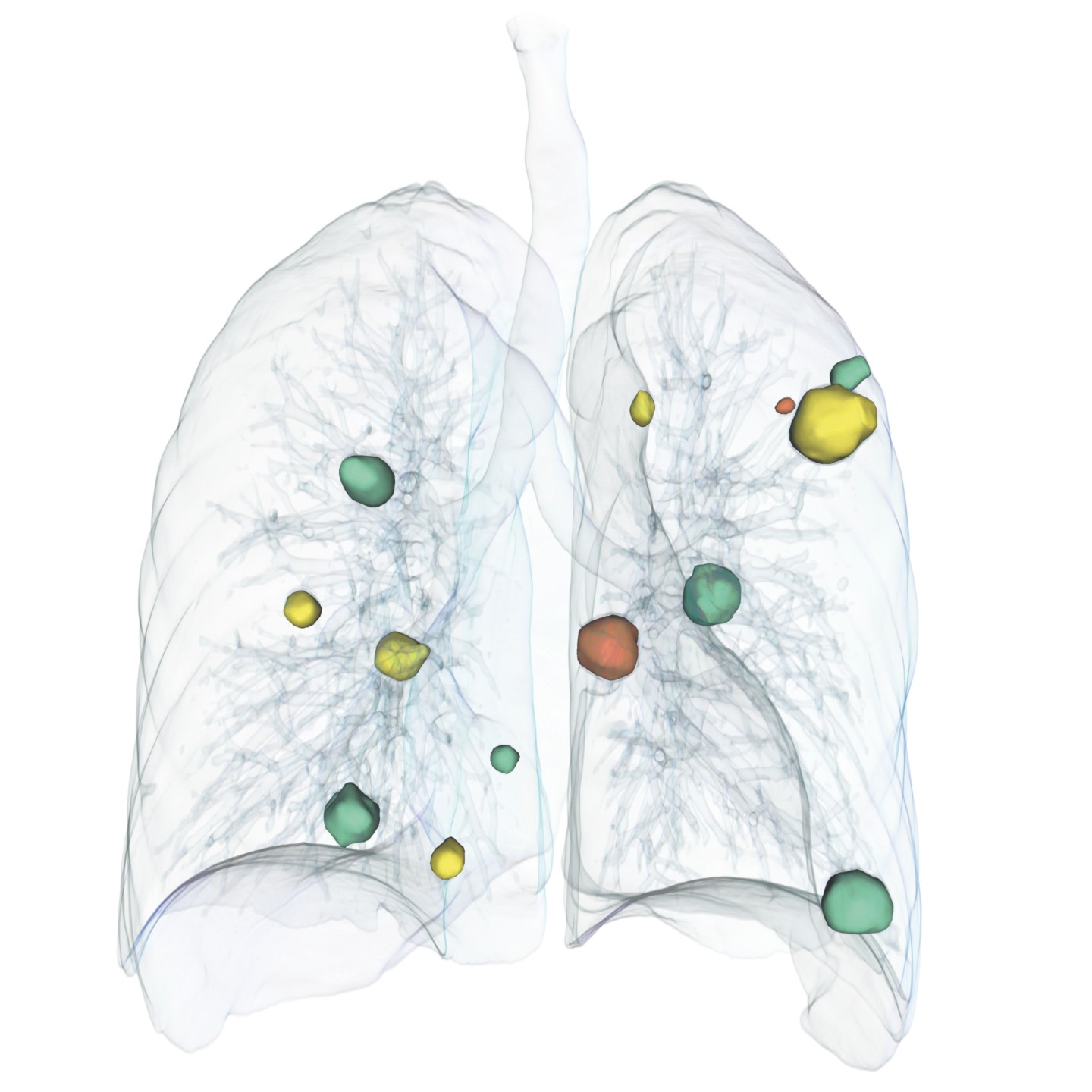 Lung Tumors Metastasis