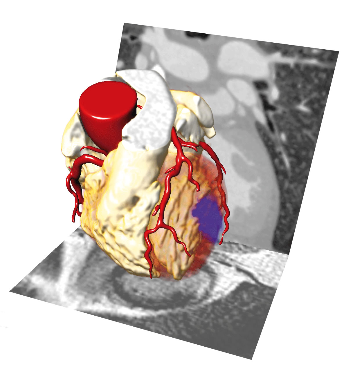CAIPI software module heart analysis bloodflow heartchambers